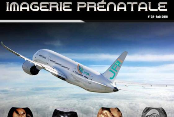 Radioactif N°32 – Imagerie prénatale